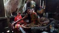 Foto : Mikael Joman (43), ODGJ yang [dipasung di Kampung Watu Mundung, Manggarai Timur, NTT (Liputan6.com/Ola Keda)