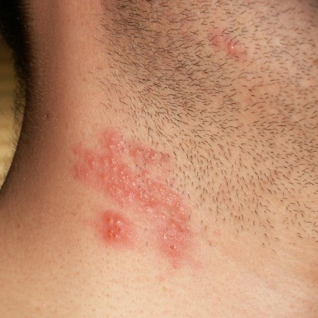 4 Penyebab Penyakit Herpes Kulit Yang Harus Diwaspadai Hot Liputan6 Com