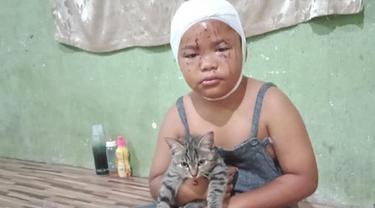 Wajahnya Sering Dicakar, Bocah Ini Tetap Rawat dan Sayang Kucingnya