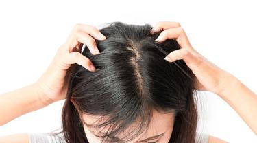 Cara Menghilangkan Kutu Rambut Dan Telurnya Dalam 1 Hari Tanpa Merusak Rambut Secara Alami Lifestyle Fimela Com