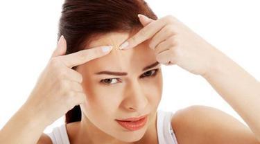 Kenapa Jerawat Di Jidat Bikin Sakit Kepala