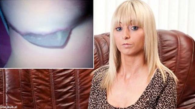 Implan Payudara Lepas Keluar Dari Buah Dada Lauren Health