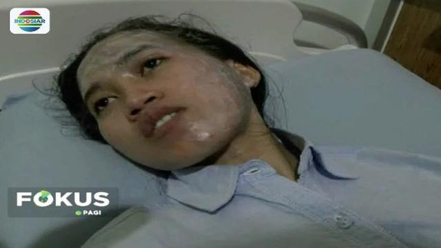 Seorang wanita di Ponorogo alami tindak kekerasan. Wajah dan pahanya terkena siraman air keras yang dilakukan oleh kekasihnya lantaran tak terima telah diputus cintanya.