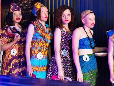 Kontestan berada dibelakang panggung bersiap mengikuti kontes kecantikan Miss Albino di Harare,  Zimbabwe (17/3). Zimbabwe menggelar kontes kecantikan bagi wanita albinisme atau albino. (AFP Photo/Jekesai Njikizana)