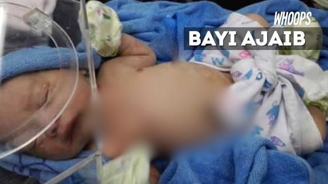 Dokter takjub melihat kondisi luka sang bayi yang cepat pulih.
