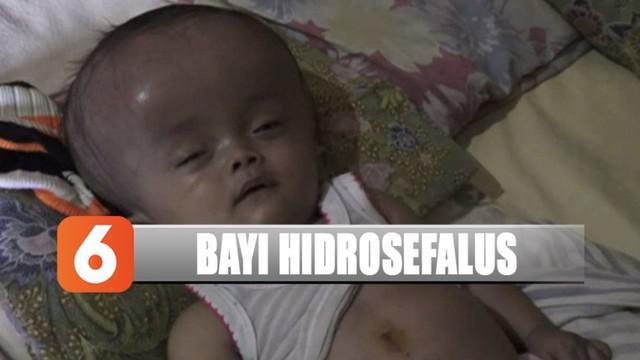 Bayi berumur 10 bulan di Nganjuk, Jawa Timur sejak di dalam kandungan menderita hidrosefalus.