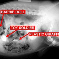 Gokil! Lima benda ini ditemukan terperangkap dalam tubuh manusia!!