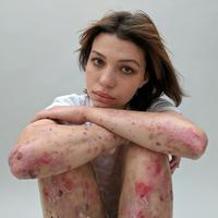 Karena bekas luka banyak orang yang mem-bully mereka, padahal orang-orang itu tak tahu apa yang sebenarnya terjadi. (Foto: boredpanda.com)