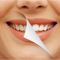 Menghilangkan Karang Gigi Dengan Baking Soda Bisa Caranya