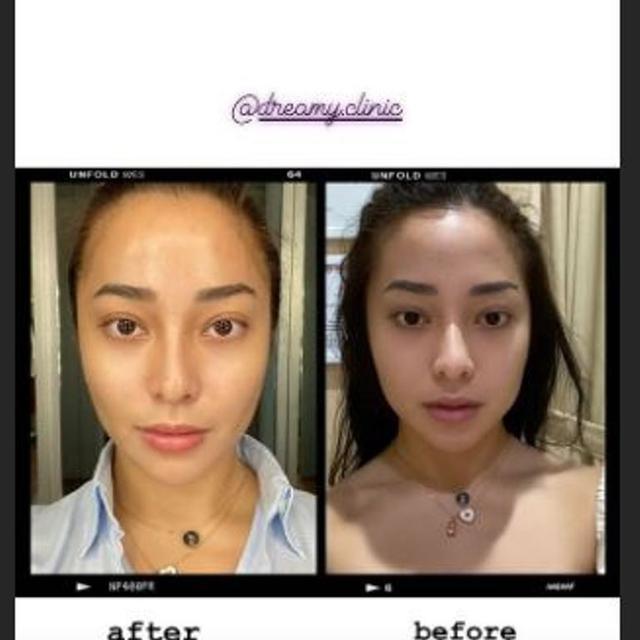 Tampil Beda, Nikita Willy Unggah Foto Sebelum dan Sesudah  Perawatan Botox