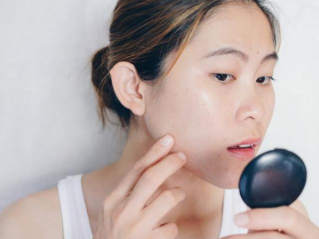 Kenali Penyebab Dan Cara Menghilangkan Jerawat Pada Dagu Beauty Fimela Com
