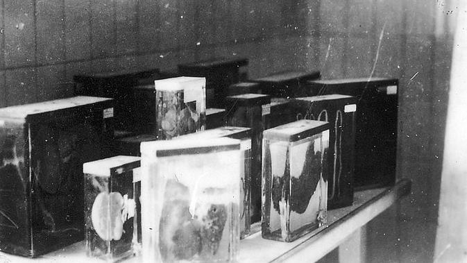 Koleksi organ manusia milik tahanan kamp konsentrasi Buchenwald (Wikimedia Commons/ Jules Rouard)