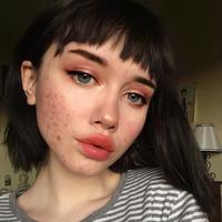 Hailey Wait mengajarkan kalau cantik itu nggak harus menutupi jerawat dengan makeup. (Sumber Foto: Instagram/pigss)