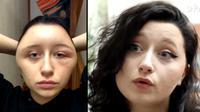 kepala bengkak akibat alergi cat rambut (foto: ladible.com)