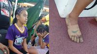 Gadis berusia 11 tahun asal Filipina berhasil raih 3 medali emas cabang lari tanpa sepatu. (Sumber: Facebook/Predirick B. Valenzuela )