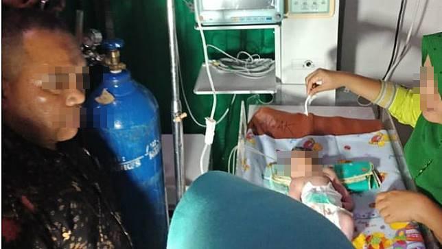 Bayi dengan satu mata yang terlahir di Sumatera/copyright Liputan6.com