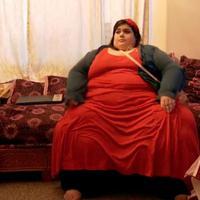 Di usianya yang ke-23 tahun cewek ini berat badannya hampir 300 kg, tapi lihat penampilannya sekarang, bikin pangling. (Foto: sarcasm.co)