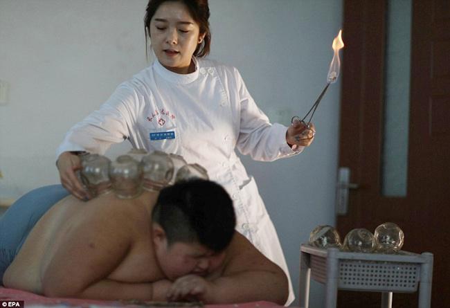 Setelah melakukan terapi selama dua bulan, setidaknya berat badan Li Hang telah turun sebanyak 15 kg | Photo: Copyright asiantown.net