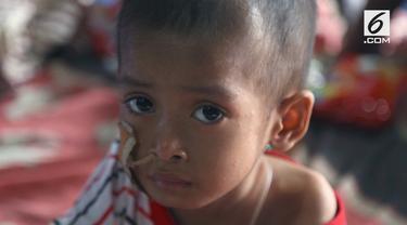 Sejak kehilangan orang tuanya, Haikal mengalami kesulitan makan. Akibatnya, Ia menderita gizi buruk hingga kini.