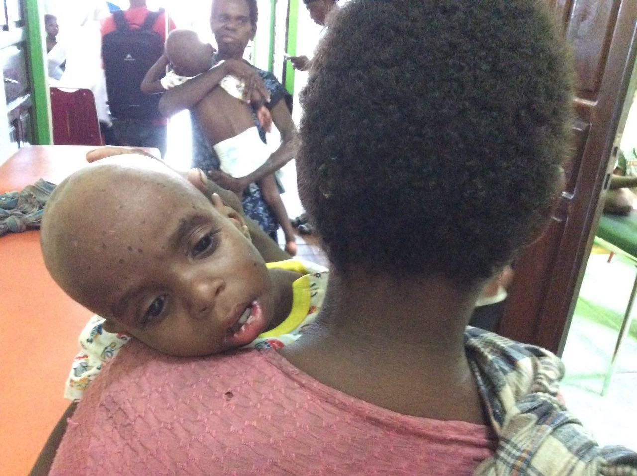 Salah satu gizi buruk Asmat yang dievakuasi ke RSUD Agats di Asmat. (Liputan6.com /Katharina Janur)