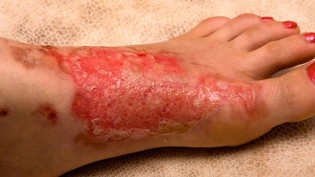 លទ្ធផលរូបភាពសម្រាប់ Obat luka bakar dan luka sengatan binatang