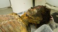 Ternyata atherosclerosis sudah ada 3.500 tahun lalu.
