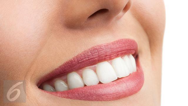 Benarkah Gigi Kuning Lebih Sehat Dari Gigi Putih Health Liputan6 Com