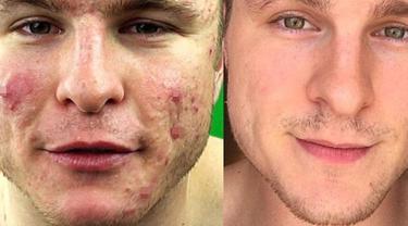 Pria Ini Derita Jerawat Super Parah Akhirnya Sembuh Dengan Beauty Fimela Com