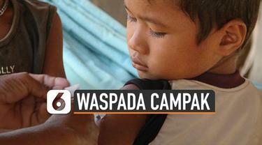 Wabah Campak di Samoa hingga merenggut 70 korban jiwa. Bayi dan anak-anak hingga lima tahun sangat rentan terjangkit campak.