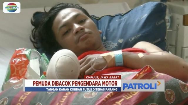 Seorang pemuda di Cianjur, Jawa Barat, tangannya hampir buntung karena dibacok geng motor saat berada di Pasar Muka.