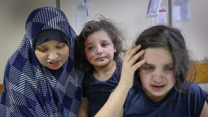 Potret anak Palestina yang menjadi korban akibat serangan Israel (AFP)