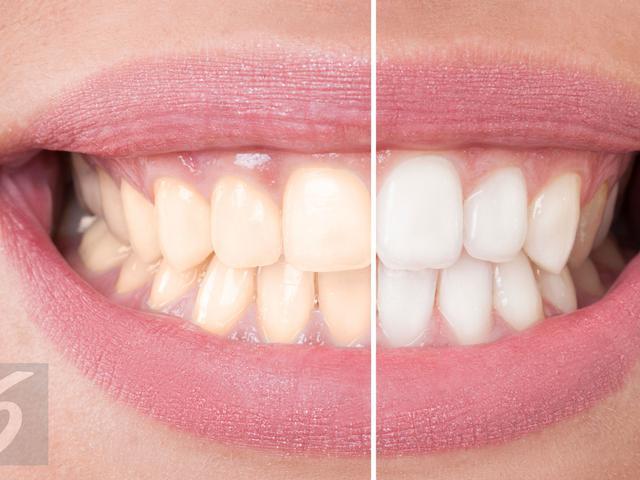 6 Jenis Gigi Ini Tak Boleh Pasang Veneer Simak Penjelasan Pakar