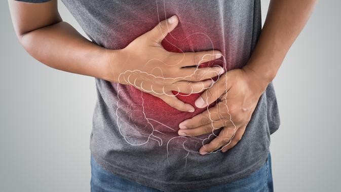 13 Faktor Risiko Kanker Usus Besar dan Gejalanya,