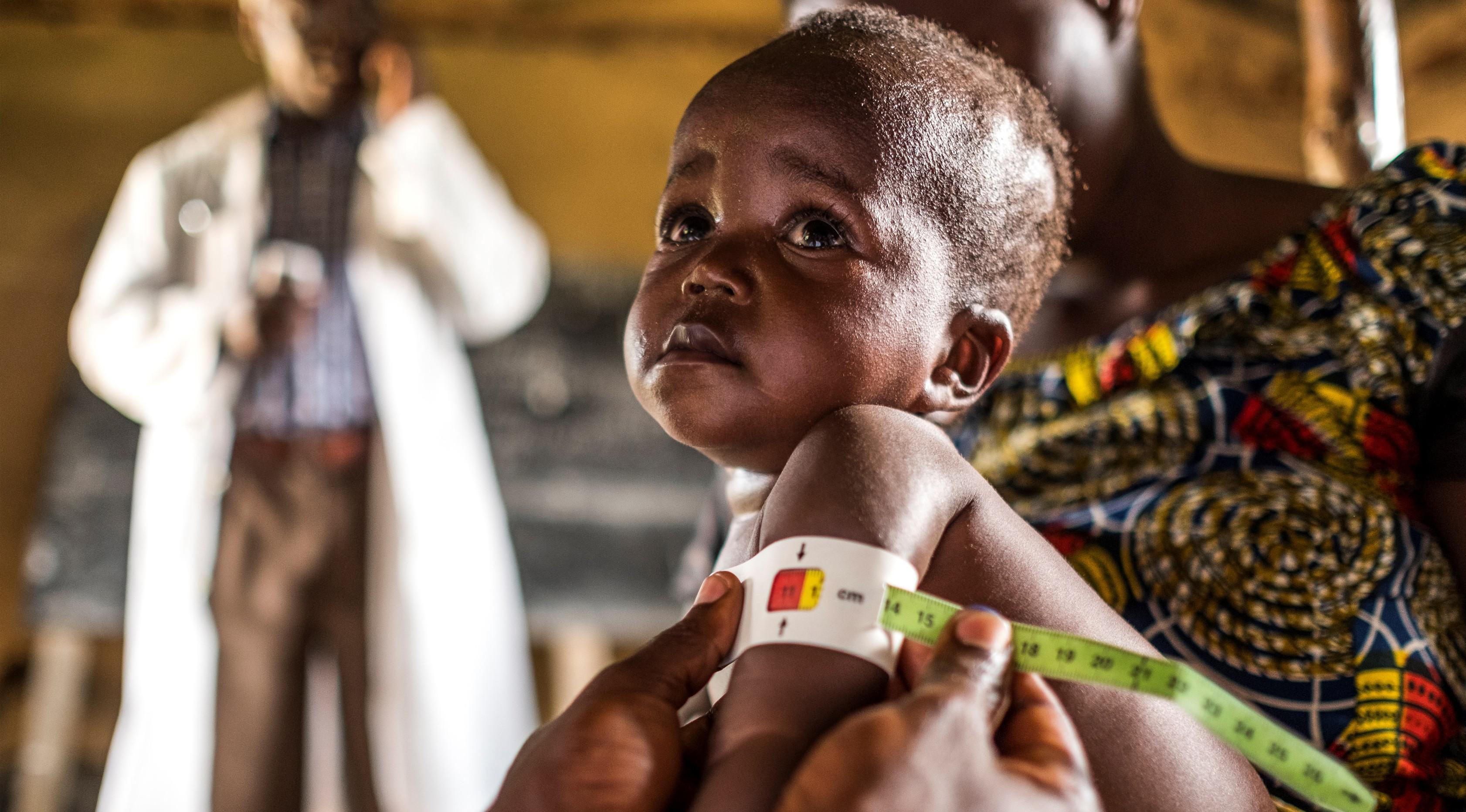 Ekspresi seorang anak saat diperiksa untuk program pencegahan kurang gizi di Pusat kesehatan di Mbau, Republik Demokratik Kongo (15/11). Di negara ini banyak penduduknya menderita kekurangan gizi. (AFP/ Eduardo Soteras)