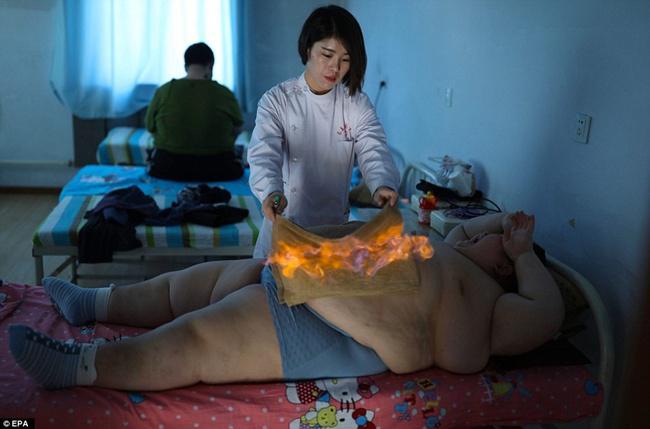 Li Hang saat melakukan terapi api demi menurunkan berat badannya | Photo: Copyright asiantown.net