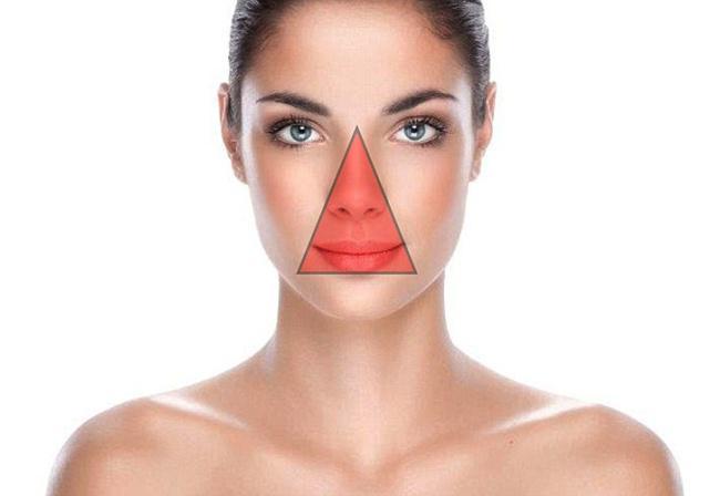 Stop Memencet Jerawat Di Hidung Agar Terhindar Dari Infeksi Beauty Fimela Com