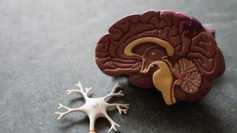 Kenapa Seseorang Bisa Alami Pendarahan Otak?