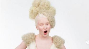 Cerita Wanita Albino Pernah Dibuang di Panti Asuhan Kini Jadi Model Terkenal