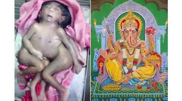 Seorang warga bahkan rela menempuh perjalanan hingga ratusan kilometer demi melihat bayi ini.