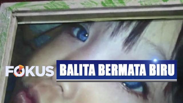 Balita di Bandung, Jawa Barat, punya bola mata yang warnanya kerap berubah-ubah.