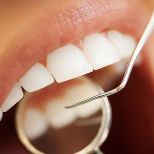 Mengapa Perlu Periksa Gigi Setiap 6 Bulan? - Health Liputan6.com