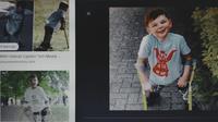 Tony Hudgell, bocah laki-laki berusia 5 tahun yang kedua kakinya diamputasi berhasil menyelesaikan tantangan berjalan 10 km dan kumpulkan donasi lebih dari Rp. 17 M.