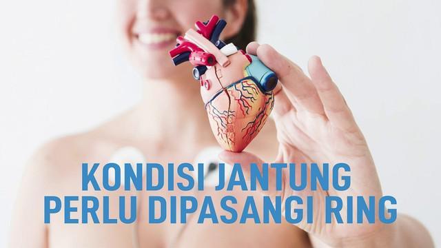 Beberapa orang perlu pemasangan ring (stent) jantung. Terutama pasien yang terkena serangan jantung.