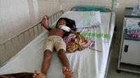 Seorang anak rimba terbaring sakit akibat wabah campak. (Bangun Santoso/Liputan6.com)