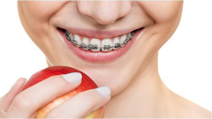 Cara Membuat Gigi Putih Untuk Yang Memakai Behel Beauty Fimela Com