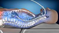 Tindakan pendinginan ini dapat mencegah kerusakan syaraf setelah otak kekurangan oksigen pasca serangan jantung.