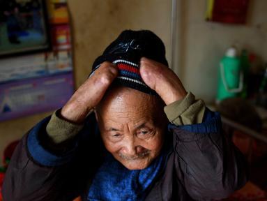 Penderita kusta Nguyen Quang Chieu duduk di ranjang kompleks RS Van Mon Leprosy, Thai Binh, Vietnam, Minggu (20/1). RS Van Mon Leprosy merupakan rumah sakit khusus kusta tertua di Vietnam. (Manan Vatsyayana/AFP)