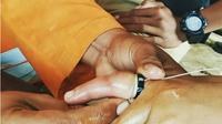 Cerita Tim Reaksi Cepat BPBD Blora Bantu Copot Cincin Kawin Warga Wonogiri hingga Istri Polisi. (Liputan6.com/Ahmad Adirin)