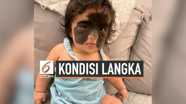 Pasangan asal Brasil mempunyai seorang anak bernama Luna. Sejak lahir, Luna memiliki tanda lahir yang hampir memenuhi seluruh wajahnya karena perubahan genetik ketika berada di dalam rahim sang ibu.