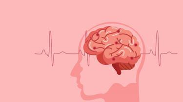 Gambar Ilustrasi Human Brain Stroke